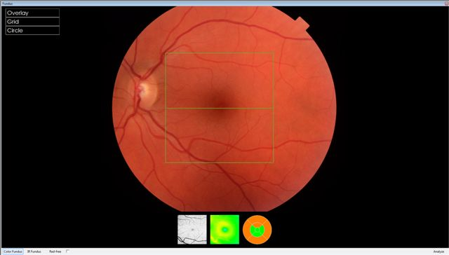 normal fundus sally